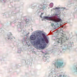 Figure A: Cyst of <em>E. histolytica/E. dispar</em> stained with trichrome. Note the chromatoid body with blunt ends (red arrow).