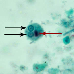Figure D: Cyst of <em>E. histolytica/E. dispar</em> stained with trichrome. Two nuclei are visible in the focal plane (black arrows), and the cyst contains a chromatoid body with typically blunted ends (red arrow).