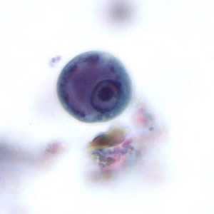 Figure A: Immature cyst of <em>E. histolytica</em>. The specimen was preserved in poly-vinyl alcohol (PVA) and stained with trichrome. PCR was performed on this specimen to differentiate between <em>E. histolytica</em> and <em>E. dispar</em>
