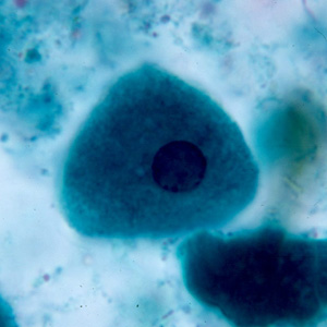 Figure C: Epithelial cell in a trichrome-stained stool smear.