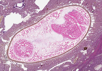 Figure B: Seed in an intestinal biopsy specimen. Such object may be confused with parasites, such as intestinal trematodes or <em>Balantidium coli</em>. The boxy, compartmentalized cells are characteristic of plant tissue. Image courtesy of the Children's Hospital of Eastern Ontario, Canada.