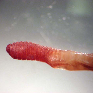 Figure A: Earthworms (<em>Lumbricus</em> and related) are commonly sent to the public health laboratories for identification. The presence of setae, segmentation, and a clitellum (red arrow, Figure B) should distinguish them from parasitic helminths. Images courtesy of the Kentucky Department of Health.