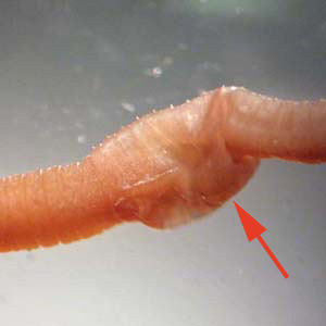 Figure B: Earthworms (<em>Lumbricus</em> and related) are commonly sent to the public health laboratories for identification. The presence of setae, segmentation, and a clitellum (red arrow) should distinguish them from parasitic helminths. Images courtesy of the Kentucky Department of Health.