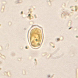 Figure D: Fungal spore in concentrated wet mounts of stool. Such spores may be confused for protozoa such as <em>Giardia</em> or <em>Chilomastix</em>.
