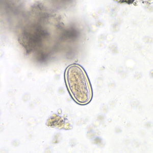 Figure B: Spore of a morel mushroom. Such spores may be confused for helminth eggs, especially hookworm.