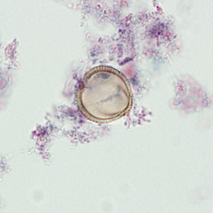 Figure D: Pollen grain in a trichrome-stained stool specimen. In this focal plane, the grain looks like the striated egg of <em>Taenia</em> sp. However, notice the lack of refractile hooks.