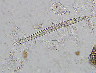 Figure C: Plant hair in a concentrated wet mount of stool. Plant hairs can be common in stool and may be confused for the larvae of hookworm or <em>Strongyloides stercoralis</em>. However, they are often broken at one end, have a refractile center and lack the strictures seem in helminth larvae (esophagus, genital primordium, etc).