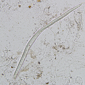 Figure D: Plant hair in a concentrated wet mount of stool. Plant hairs can be common in stool and may be confused for the larvae of hookworm or <em>Strongyloides stercoralis</em>. However, they are often broken at one end, have a refractile center and lack the strictures seem in helminth larvae (esophagus, genital primordium, etc).