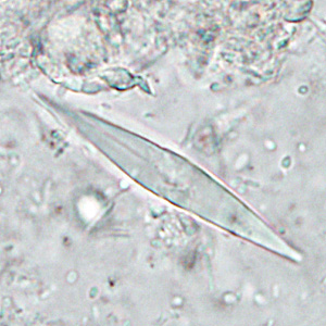 Figure C: Charcot-Leyden crystals. These crystals are the breakdown products of eosinophils and maybe found in the feces and sputum of people with tissue-invading parasitic infections or various allergic reactions.
