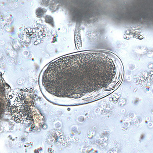 Figure F: Mite egg in a formalin-concentrated stool specimen. Mite eggs are similar to hookworm eggs but are usually larger (but not always). In this specimen, leg buds can be seen in the lower right area of the egg.