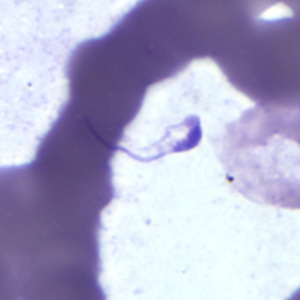 Figure A: Platelet in a thick blood smear. The nature of the platelet gives it the appearance of a trypomastigote of <em>Trypanosoma</em> sp.