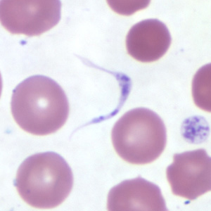 Figure B: Platelet in a thin blood smear. The nature of the platelet gives it the appearance of a trypomastigote of <em>Trypanosoma</em> sp.