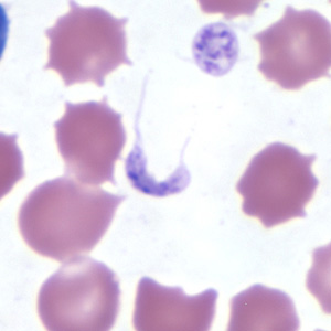 Figure C: Platelets in thin blood smears. The nature of the platelets gives them the appearance of trypomastigotes of <em>Trypanosoma cruzi</em>.
