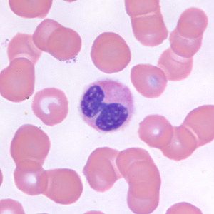 Figure C: Neutrophil in a thin blood smear, stained with Giemsa.