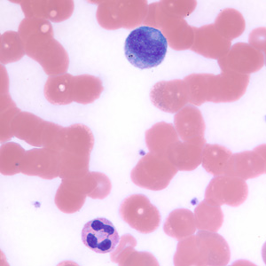 Figure F: Neutrophil (lower) and lymphocyte (upper) in a thin blood smear, stained with Giemsa.