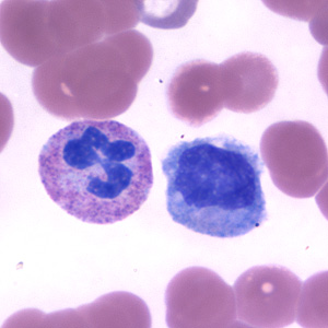 Figure A: Neutrophil (left) and monocyte (right) in a thin blood smear, stained with Giemsa.