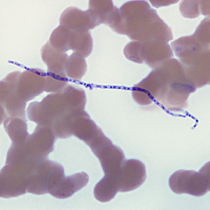 Figure B: Fungal spore of <em>Helicosporium</em> (or related). Such objects are air-borne contaminants in laboratories and may be mistaken for microfilariae in stained blood smears.