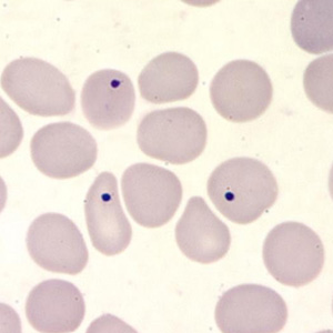 Figure E: Howell-Jolly bodies in a thin blood smear, stained with Giemsa. Howell-Jolly bodies are inclusion that may be seen in splenectomized patients or patients with an otherwise non-functioning or atrophic spleen, and in patients with severe anemia or leukemia.