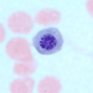 Figure C: Nucleated red blood cell in a thin blood smear, stained with Giemsa. There are several conditions which can cause a premature release of nucleated red blood cells into circulation. Such objects may be confused for schizonts of <em>Plasmodium</em> spp.