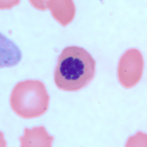Figure D: Nucleated red blood cell in a thin blood smear, stained with Giemsa. There are several conditions which can cause a premature release of nucleated red blood cells into circulation. Such objects may be confused for schizonts of <em>Plasmodium</em> spp.