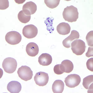 Figure A: <em>Babesia</em> sp. in a thin blood smear stained with Giemsa. Note the clumped extracellular forms indicative of <em>Babesia</em>.