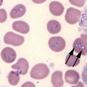 Figure C: <em>Babesia microti</em> in a thin blood smear stained with Giemsa. Note the intra-erythrocytic vacuolated forms indicated by the black arrows.