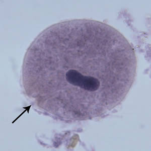 Figure E: <em>B. coli</em> trophozoite in a Mann's hematoxylin stained smear, 500× magnification. Note the cytosome (black arrow) and the bean shaped macronucleus.