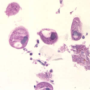 Figure B: <em>B. coli</em> trophozoites in colon tissue stained with hematoxylin and eosin (H&E) at 400x magnification.