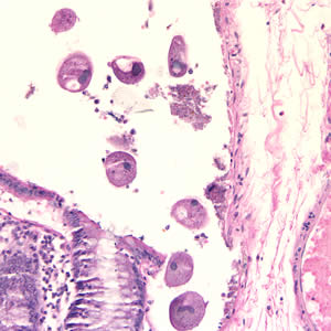 Figure A: <em>B. coli</em> trophozoites in colon tissue stained with hematoxylin and eosin (H&E) at 200x magnification.