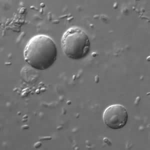 blastocystis paraziták