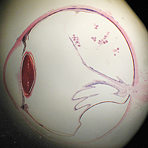 Figure A: Cross-section of a human eye, showing multiple protoscoleces within a coenurus.