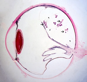 Figure A: Cross-section of a human eye, showing multiple protoscoleces within a coenurus (arrows) and very thin bladder walls (darts).