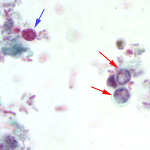 Figure A: <em>Cryptosporidium</em> sp. oocysts stained with trichrome. Oocysts may be detected, but should not be confirmed by this method. Trichrome staining is inadequate for a definite diagnosis because oocysts will appear unstained. Here the <em>Cryptosporidium</em> oocysts are represented by red arrows; the blue arrow represents yeast.