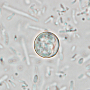 Figure D: Oocyst of <em>C. cayetanensis</em> in an unstained wet mount of stool. Image taken at 1000x magnification.