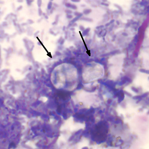 Figure B: Two oocysts of <em>C. cayetanensis</em> stained with modified acid-fast stain. Both oocysts failed to take up the carbol fuschin stain. Image courtesy of the Arizona State Public Health Laboratory.