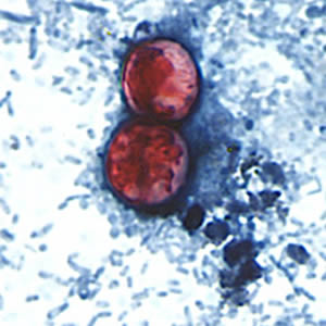 Figure E: A pair of oocysts of <em>C. cayetanensis</em> stained with safranin (SAF).