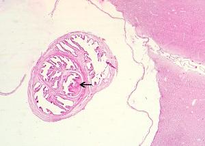 cysticercosis parazita)