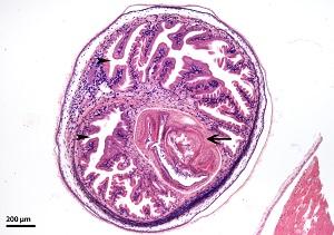 Neurocysticercosis: definíció, tünetek és kezelés