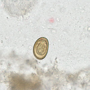 Figure C: Egg of <em>D. dendriticum</em> in an unstained wet mount of stool.