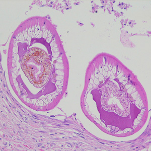 Figure A: Cross-sections of larvae of <em>D. renale</em> in a subcutaneous nodule, stained with hematoxylin and eosin (H&E). Images courtesy of the Laboratory of Parasitology, National Public Health Research Center in Vilnius, Lithuania