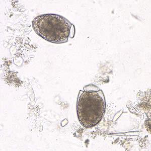 A diphyllobothriasis néz ki - Galandférgek