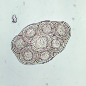Figure A: <em>D. caninum</em> egg packet, containing 8 visible eggs, in a wet mount.