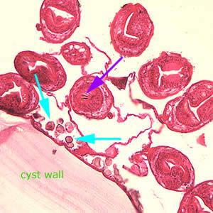 CDC - DPDx - Echinococcosis