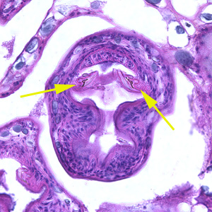 Figure B: Higher magnification (400x) of the specimen in Figure A. Notice a pair of refractile hooks (yellow arrows). Cestode hooks do not stain with H&E but may be visible with proper adjustment of the microscope.