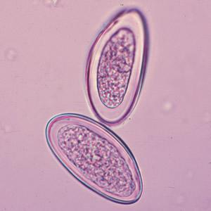 enterobius vermicularis monoxene