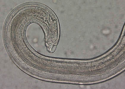 Figure C: Close-up of the posterior end of the worm in Figure A. Note the blunt end. The spicule is withdrawn into the worm in this specimen.