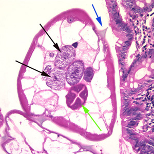 Figure B: Cross-section of an adult female <em>E. vermicularis</em> from the same specimen shown in Figure A. Note the presence of the alae (blue arrow), intestine (green arrow) and ovaries (black arrows).
