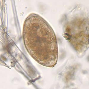 Fascioliasis adolescaria