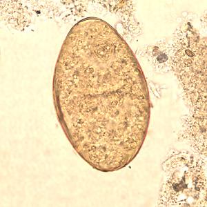 Cdc Dpdx Fasciolopsiasis