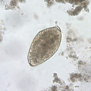 Figure D: Egg of <em>F. buski</em> in an unstained wet mount of stool.